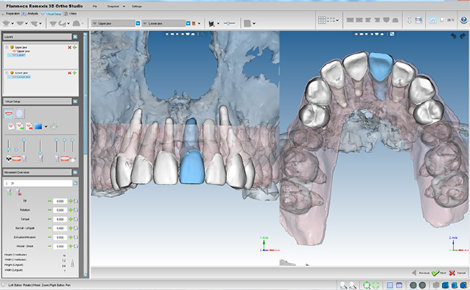 Romexis 3D OrthoStudio Advanced